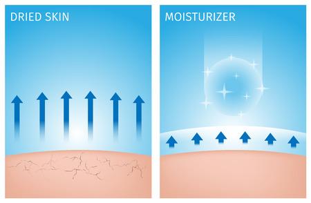 droge huid en de huid met een vochtinbrengende crème, voor en na Vector Illustratie