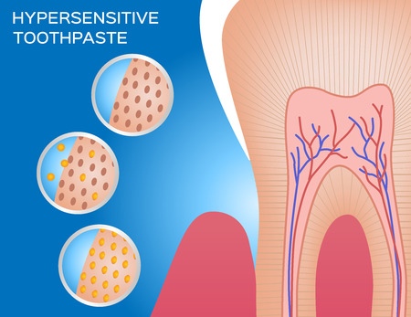 hypersensitive toothpaste demonstration vector
