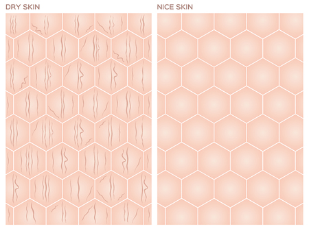 dehydrated: Dry skin, Nice skin texture , vector
