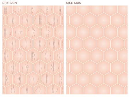 perfect skin: Dry skin, Nice skin texture , vector
