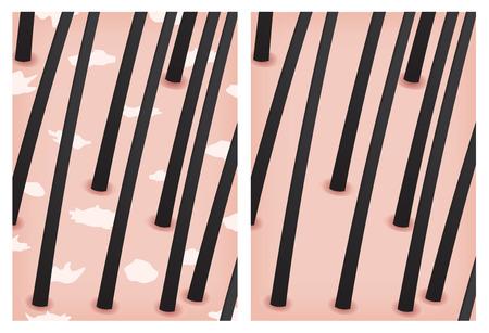 scaly: dandruff and no dandruff skin Illustration