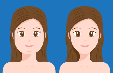 liposuction: fat and thin women vector