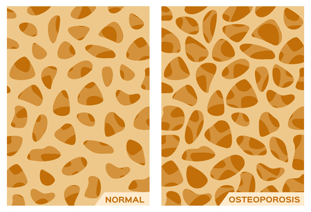 cancellated: Osteoporosis bone and Strong bone