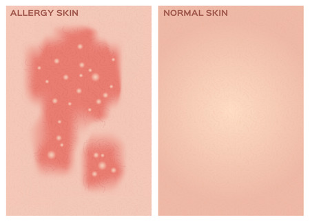 human skin texture: allergy skin texture and healthy skin texture