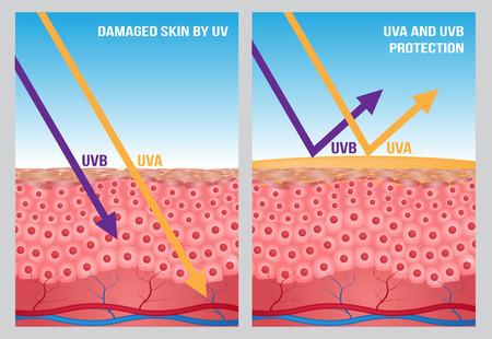 UV, UV A y UV B Protección Foto de archivo - 57791684