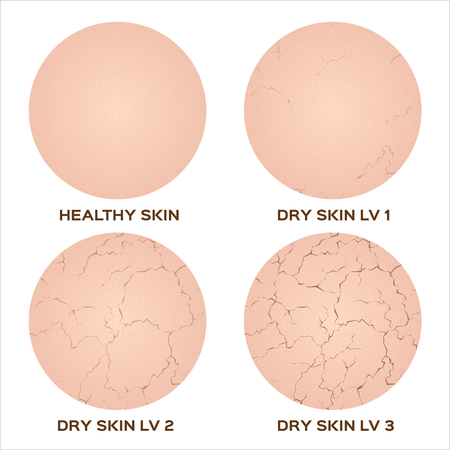 Webstep of healthy skin to dry skin texture , vector Çizim