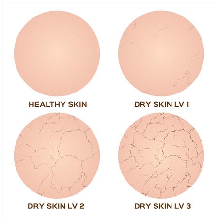 Webstep van een gezonde huid om de huidstructuur te drogen, vector
