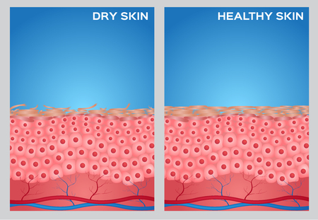 Droge huid, gezonde huid textuur, vector