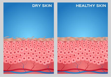 La piel seca, textura de la piel sana, vector Ilustración de vector