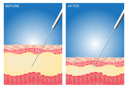 Zsírleszívás előtt és után, kövér, diéta, műtét, zsírleszívás tökéletes Illusztráció