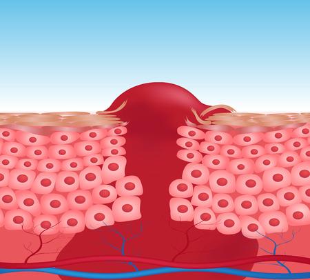 herida: herida gr�fico vectorial piel. la sangre sale de la herida
