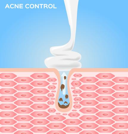 crème elanden en lotion op de huid tot het afsluiten van een acne. acne vector graphic