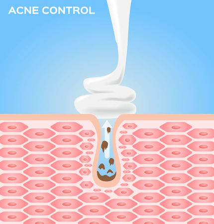skin care face: cream moose and lotion apply on skin to take out an acne . acne vector graphic