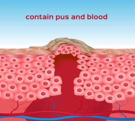 herida: magullado, gr�fico de la piel de la herida Vectores