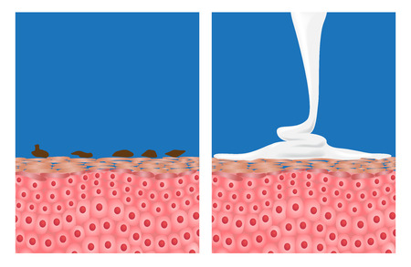 dirty skin , bacteria and skin with foam mousse soap apply to clean it Illustration