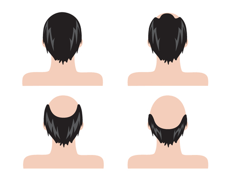 Stages of hair loss . bald man . no hair