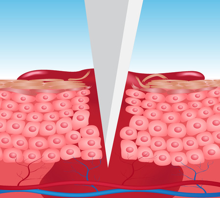 herida gráfico vectorial piel. la sangre sale de la herida, añadir la versión del cortador