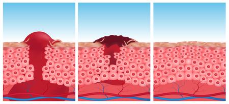 grafiki wektorowej rany skóry. 3 etapy rany do skóry normalnej