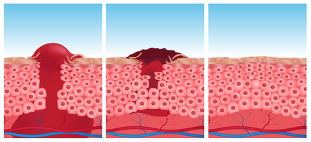 fibroblast: wound skin vector graphic . 3 stages of wound to normal skin Illustration