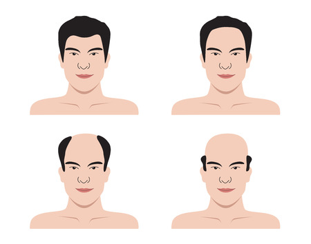 Stages of hair loss . bald man . no hair Vetores
