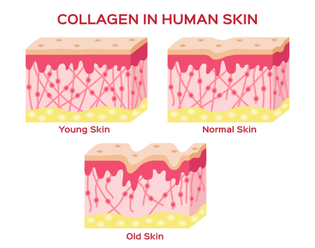 collagen in younger skin and aging skin , 3 type collagen skin version Stock fotó - 60484932