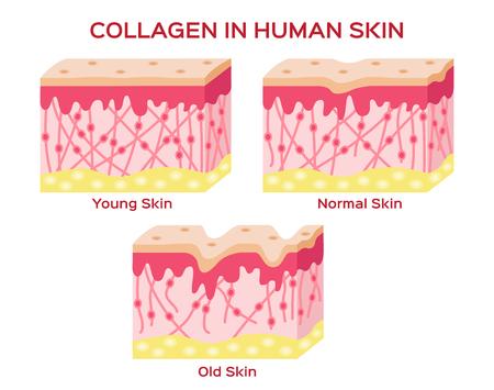 collagene nella pelle più giovane e l'invecchiamento della pelle, 3 tipo di versione collagene della pelle Vettoriali