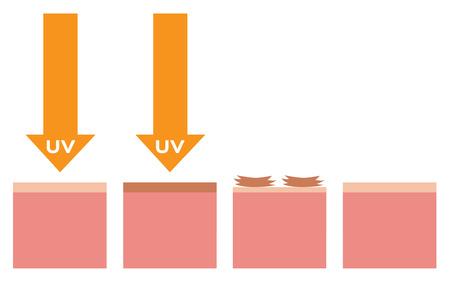 penetrate: uv and dead skin , vector , orange uv version