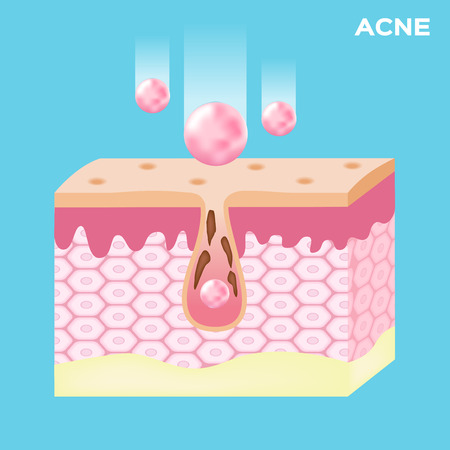 take out: lotion apply on acne skin and take out the acne . vector graphic