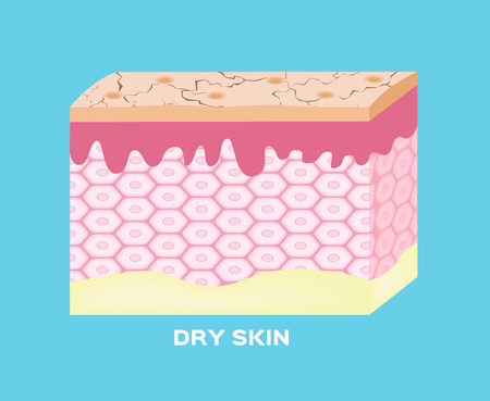 Dry skin texture , vector , dry line