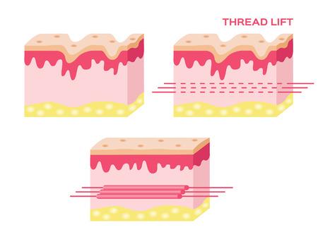 스레드 리프트의 단계, 스레드 리프트 벡터와 피부 벡터 일러스트