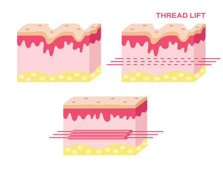 body damage: skin vector with step of thread lift , thread lift vector