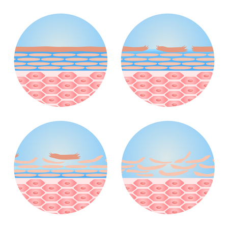 dehydrated: dry skin icon vector . step of dry skin happened