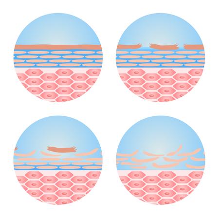 dry skin: dry skin icon vector . step of dry skin happened
