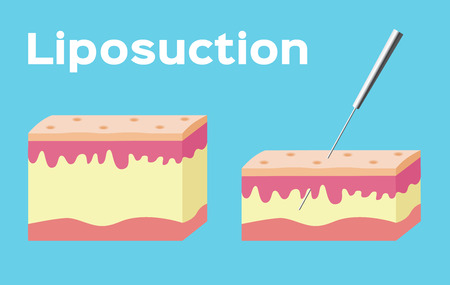 Liposuction before and after , fat , cosmetic . step of Liposuction