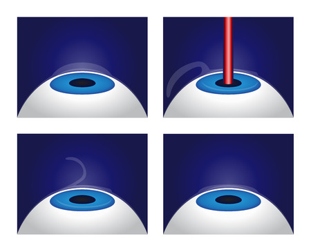 Illustration showing a laser eye surgery procedure