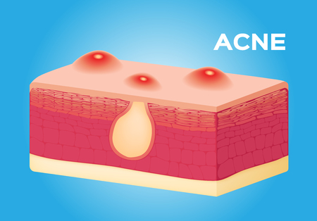 sebaceous gland: acne vector on skin , anatomy