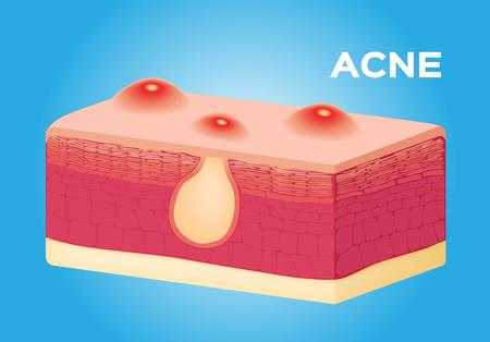 sebaceous: acne vector on skin , anatomy