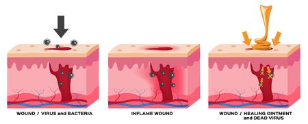 herida gráfico vectorial piel. 3 etapas de la herida a la piel normal