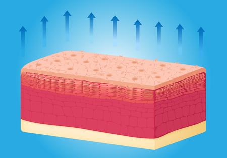 dehydrated: Dry skin texture , vector , anatomy Illustration
