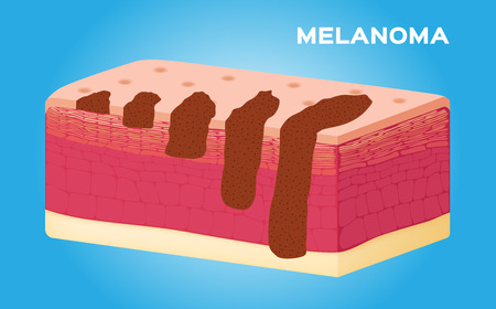melanoma: illustration of the growth of melanoma