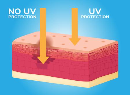 melanoma: uv protection vector , uv comparison Illustration