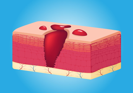 connective tissue: wound skin vector graphic . the blood come out of wound Illustration
