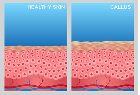 fu�sohle: callus skin anatomy and healthy skin