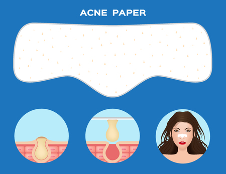 numbering: infographic of how to cure acne from nose Illustration