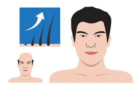 bald head: bald head man turn in to hairy man