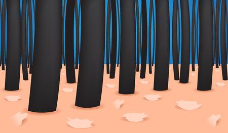 secretion: Dandruff vector , closeup on skin and dandruff Illustration