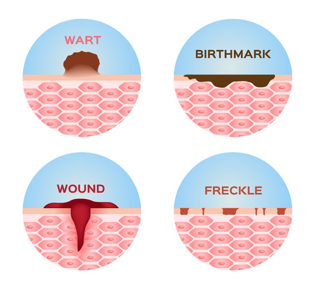 wart: wart , wound , freckle and birthmark skin icon and vector medical Illustration