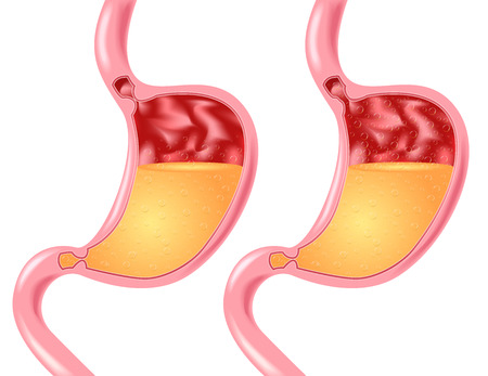 esophageal: Stomach disease: belching, Heartburn or reflux. stomach vector Human anatomy Illustration