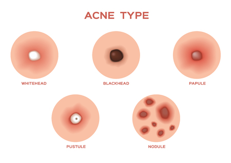 acne: Types of Acne and Pimples, stages of development, vector illustration