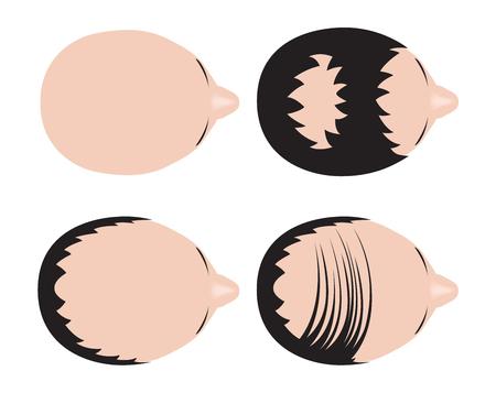 bald spot: type of baldness , bald head vector , no hair